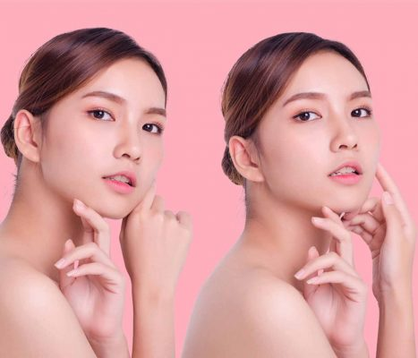 Trimelasin Cream Reviews use side efect and face glow after and before