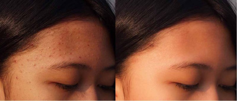 Trimelasin Cream Reviews use side effect and face glow after and before to get glow face crème