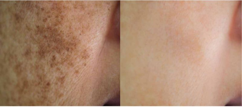 Trimelasin Cream use face glow after and before clean face
